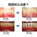 さらに進んだ歯周病の治療について!