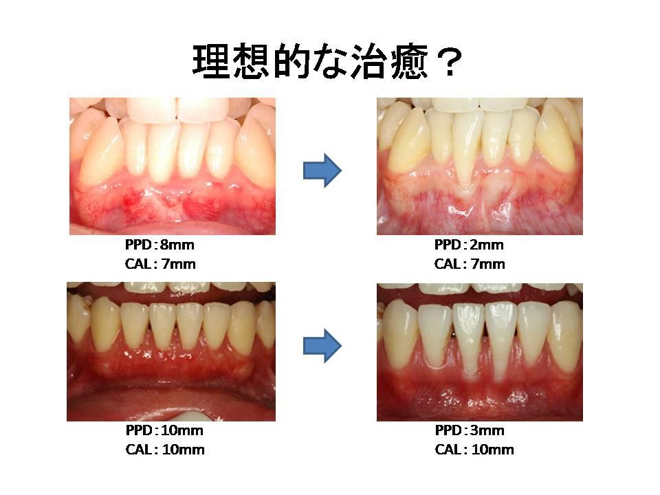 から 見える 歯茎 歯 が 上の一番奥歯の歯茎から歯石が・・・